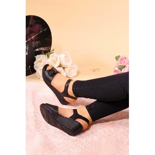 Konfores 935 Bayan Anatomik Sandalet Ayakkabı