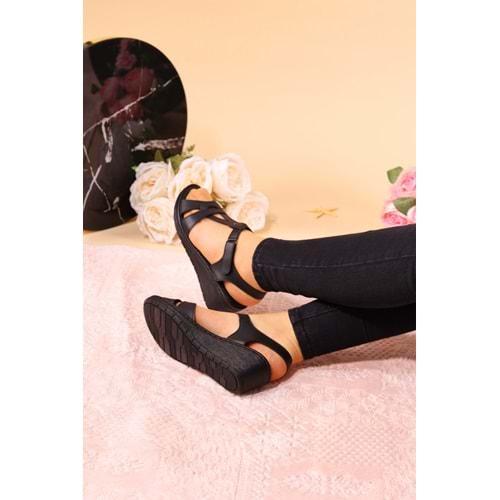 Konfores 939 Bayan Anatomik Sandalet Ayakkabı